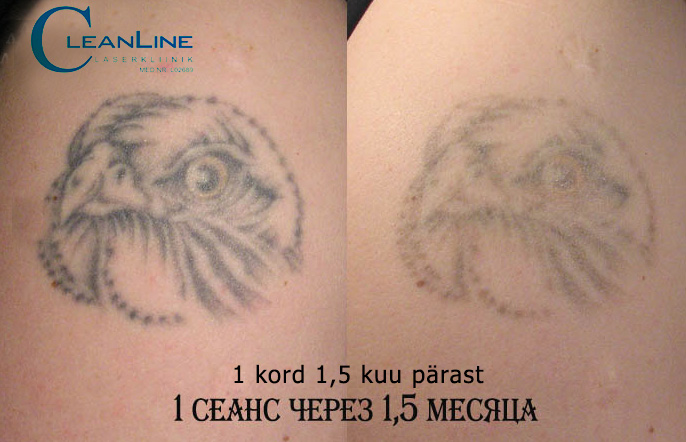 cleanline-tatoo-removal